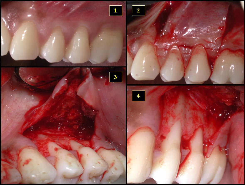 types of bone grafts in dentistry pdf